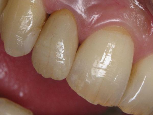 Qu'est-ce qu'une couronne dentaire provisoire ?